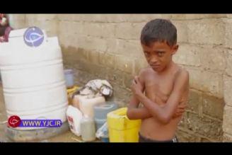 مرگ تدریجی میلیونها یمنی زیر دست آمریکا، انگلیس و عربستان
