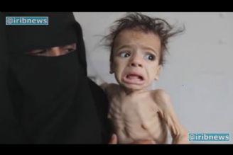 قحطی؛ ابزار جنگی سعودیها در یمن