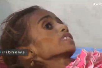 گلهای پرپر یمن در هیاهوی جام جهانی