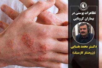 تظاهرات پوستی در بیماری کووید-19